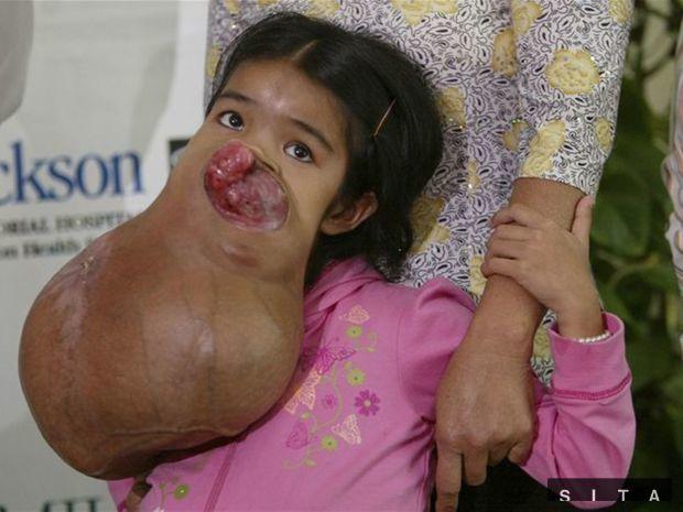 15-летней девочке удалят 7-килограммовую опухоль с лица.