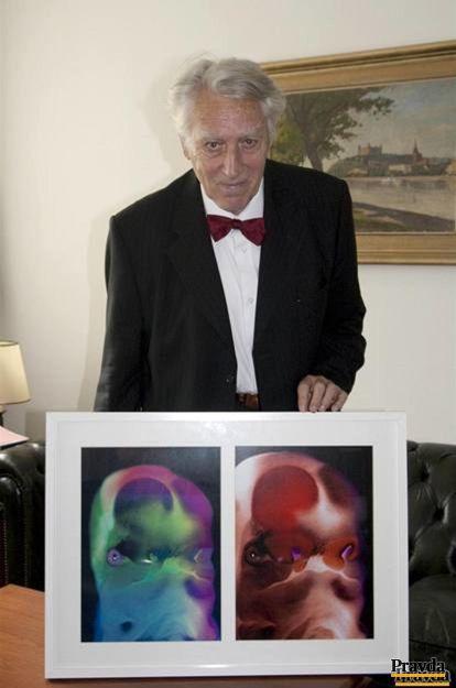 Profesor Jan E. Jirásek so svojou fotografiou hlavičky ľudského embrya starého 42 dní po oplodnení.
