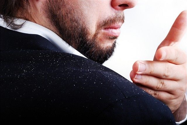 lupiny - kožný problém - sako posypané lupinami