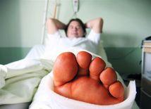 zlomenina, úraz, nehoda, nemocnica, noha, sadra, pacient