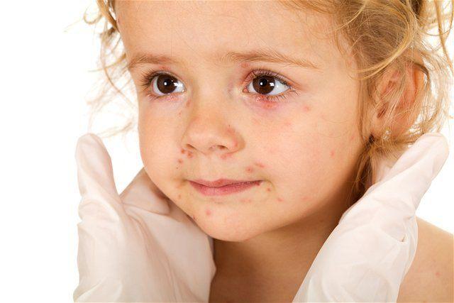 kiahne, vyrážky, dieťa, choroba