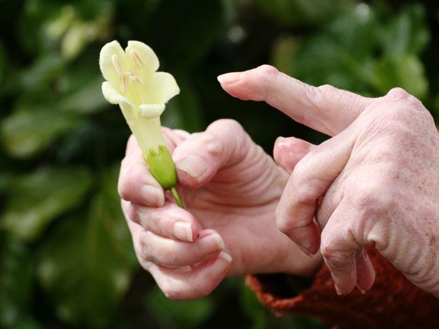 kvetina, ruky, lupus