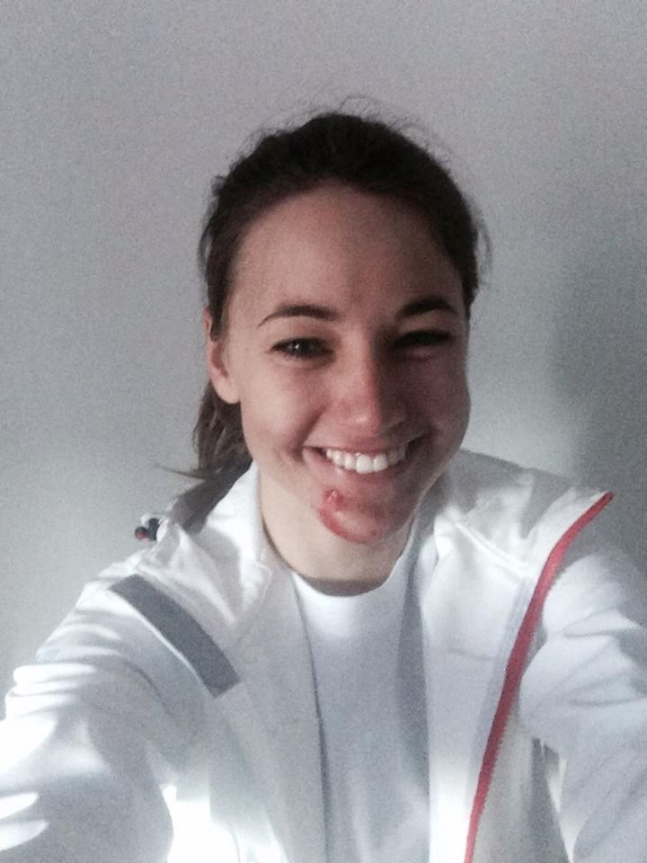 """Trošku väčší polet na prvom skoku počas tréningu"""" - takto komentovala svoj pád Zuzana Stromková na Facebooku."""