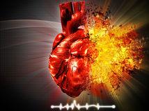 srdce, infarkt, EKG, prvá pomoc, srdcový záchvat, nemocnica