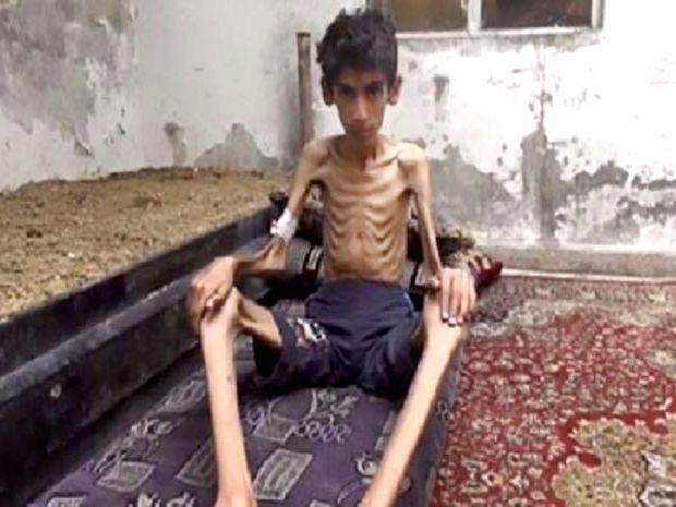 Sýria, Madája, chlapec