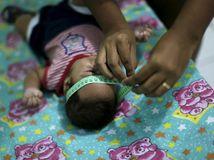 Zika, dieťa, mikrocefália