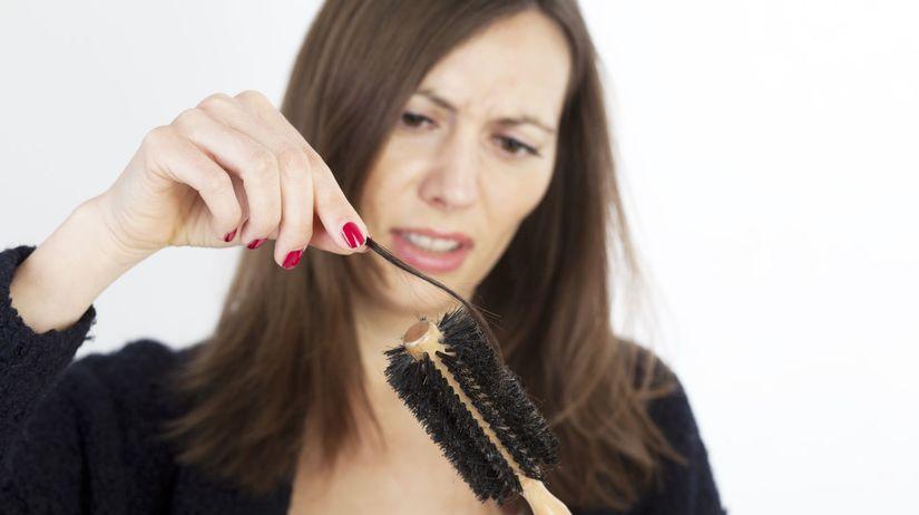 Plešivenie  Strata vlasov trápi mužov aj ženy - Zdravá krása ... 917634ea373