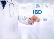 IBD, ochorenie čriev, lekár