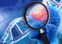 alzheimerova choroba, pamat, demencia, mozog