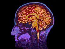 mozog, človek