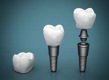 Dentálny implantát.