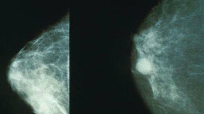 Rakovina prsníka