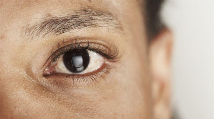 pleť - kozmetika - žena - akné