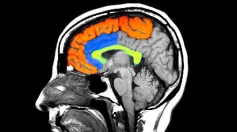 mozog, hlava, nervy, rontgen