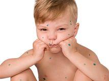 osýpky - dieťa - infekcia -