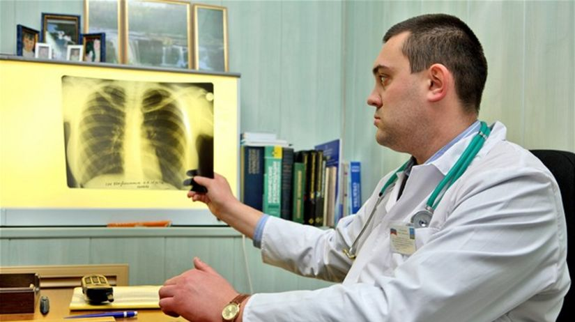 lekár, ochorenie, rentgen, pľúca, tuberkulóza