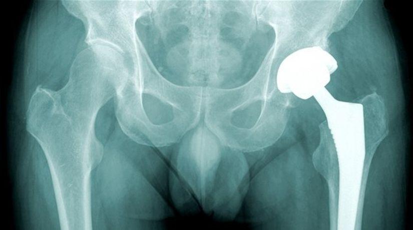 kĺb - výmena - rontgen - rontgenová snímka