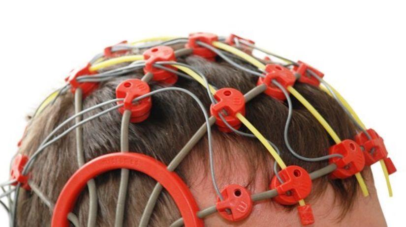 epilepsia - záchvat - vyšetrenie - elektródy
