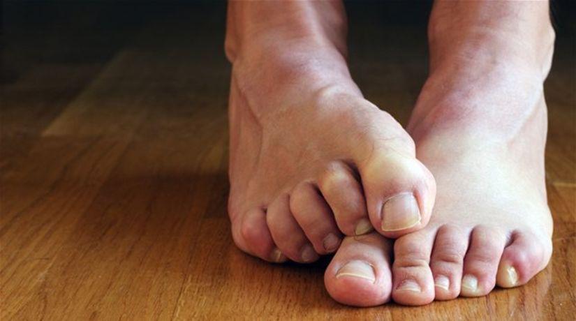 nohy - chodidlá - pleseň - starostlivosť o nohy
