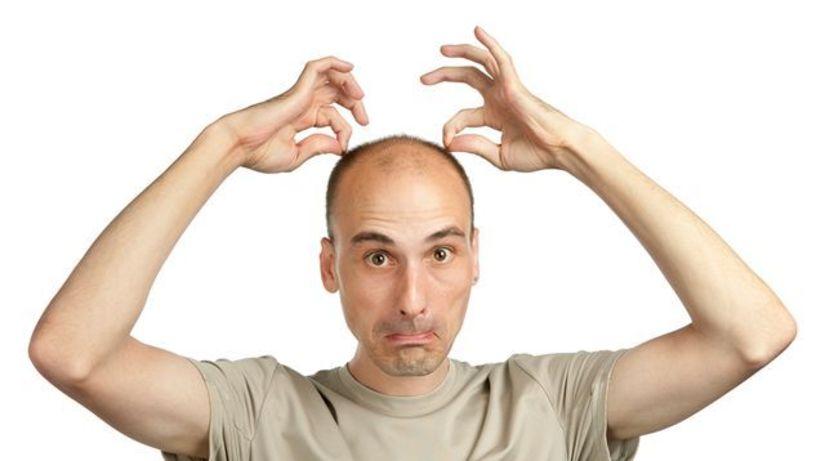 plešina, plešatý, vlasy, hlava