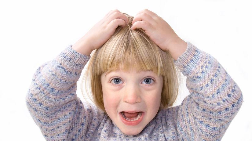 dieťa, vlasy, svrbenie, hnida, voš, vši, hnidy