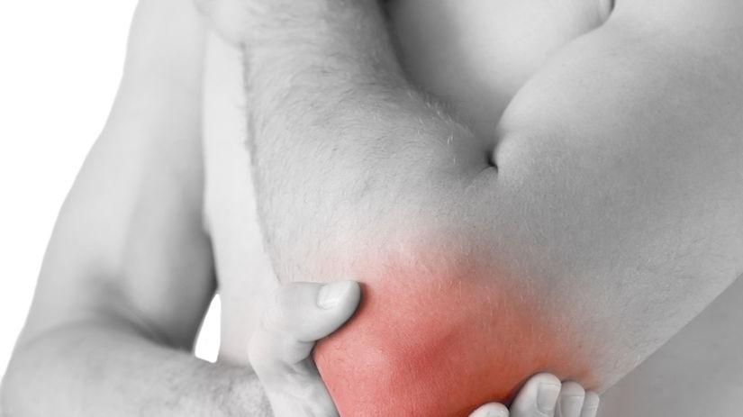 úraz, zranenie, bolesť, kĺb, artritída
