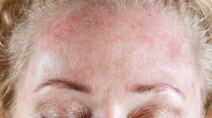 systémový lupus, pokožka, pleť, vyrážka