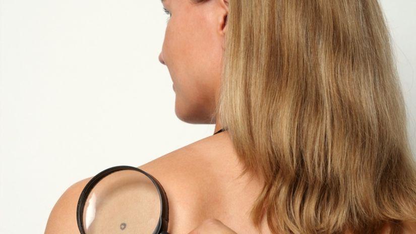 znamienko - pokožka - prevencia