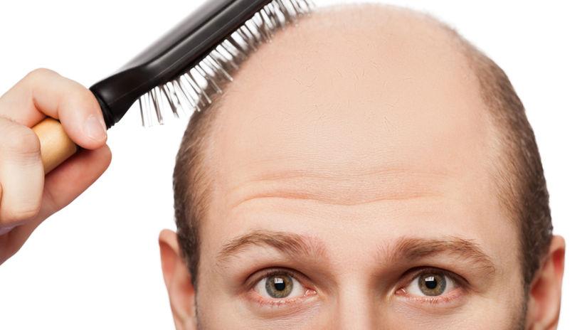 vlasy, hrebeň, účes, plešina, hlava