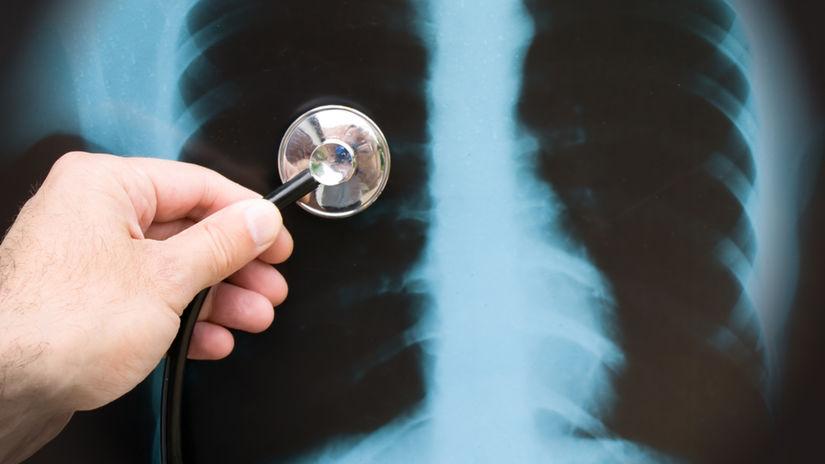 pneumo, pľúca, röntgen, rakovina, snímka,...