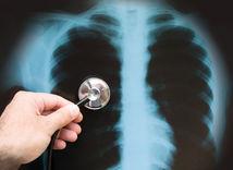 pneumo, pľúca, röntgen, rakovina, snímka, fonedoskop
