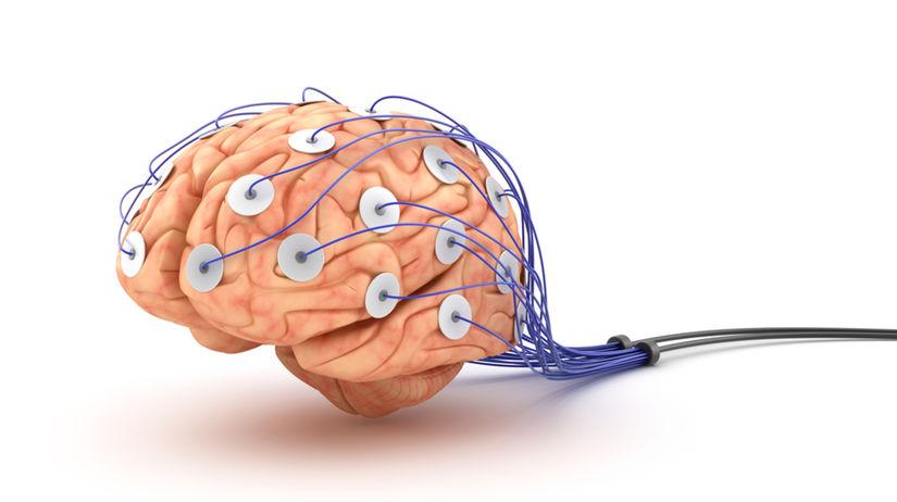 mozog, EFG, dióda, elektróda, detektor lži,...