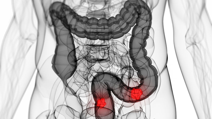 rakovina hrubého čreva