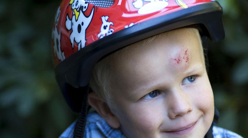 úraz hlavy - rozbitá hlava - detské úrazy