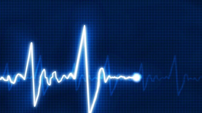 kardiogram, srdce, kardiograf, infarkt, tlkot...