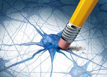 alzheimer, nervy, neurón, mozog