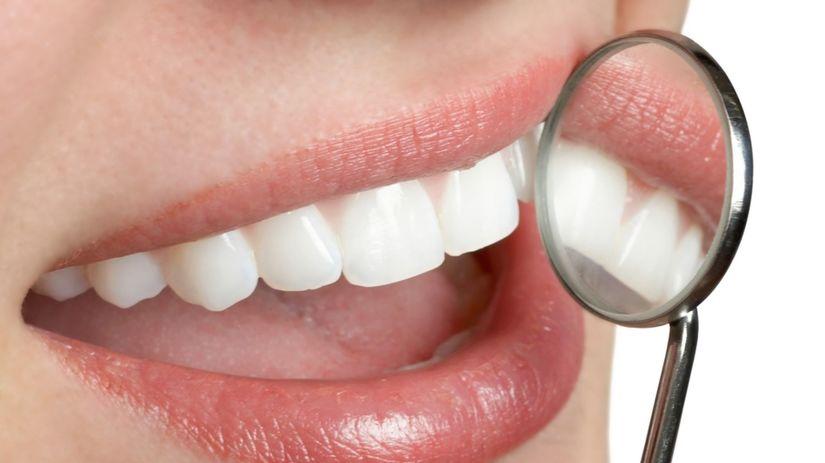 zuby, úsmev, stomatológ, zubná