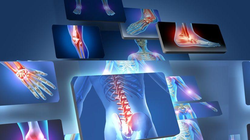 Röntgen, bolesť, kĺby