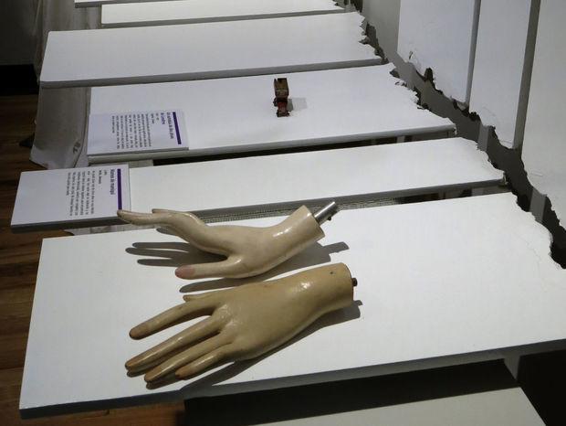 Ruky z figuríny, ktoré patrili neznámemu darcovi, majú symbolizovať päťročný vzťah plný rozchodov a vášnivých znovuspojení. Aj tento exemplár bol súčasťou putovnej výstavy nazvanej Múzeum rozpadnutých vzťahov (Museum of broken relationships).