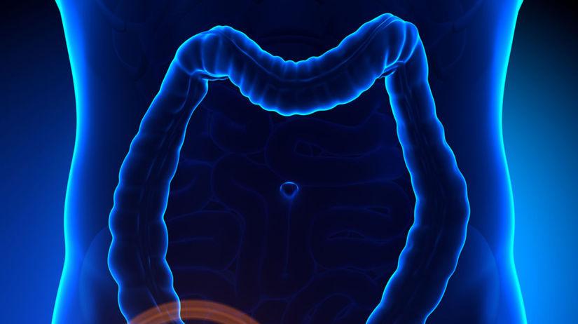slepé črevo, appendix
