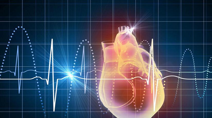 srdce, EKG, tep