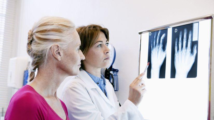 Röntgen, kĺby, vyšetrenie, diagnóza,...