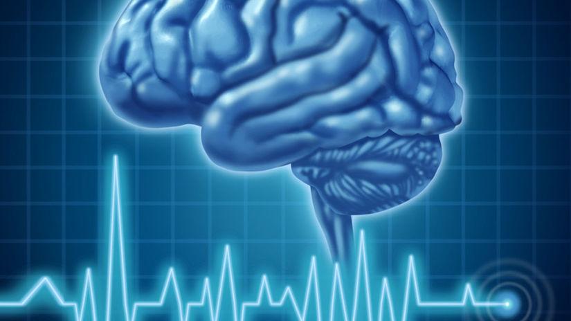 mozog, prvá pomoc, EKG, nemocnica, mozgová...