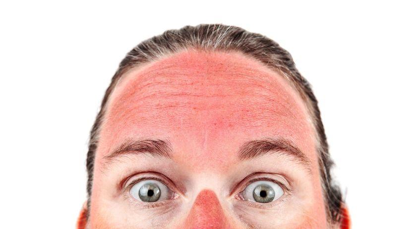 tvár, opaľovanie, spálenie, červená pokožka, koža