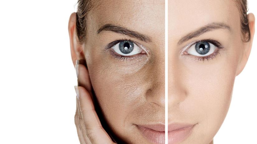 Problémy s pórovitou pokožkou rieši mnoho žien.