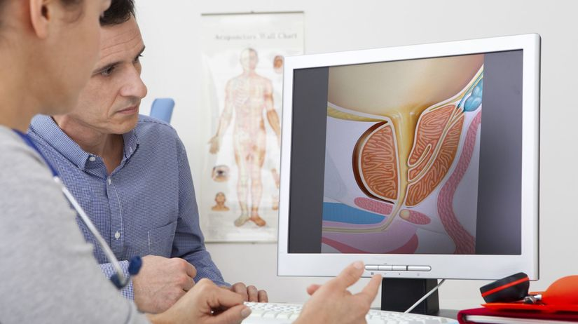 prostata, urológ, vyšetrenie