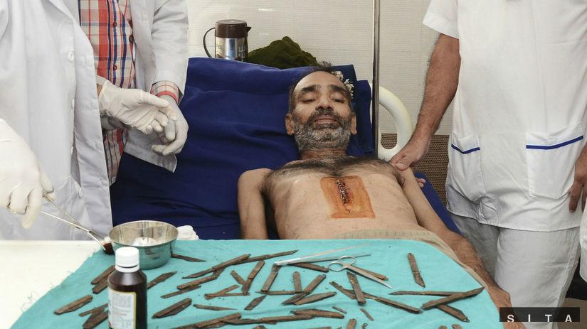 India, pacient, nože, operácia