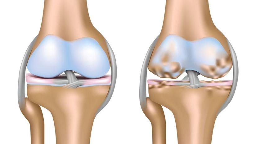 kĺb, koleno, osteoartróza, artróza