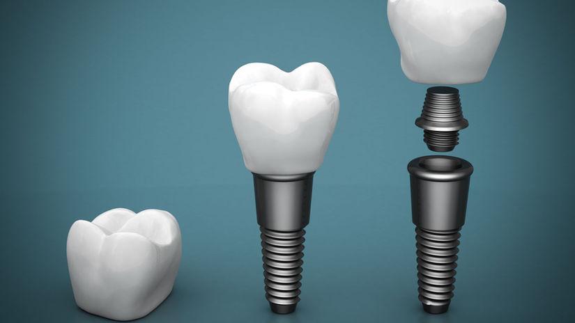 zub, implantát