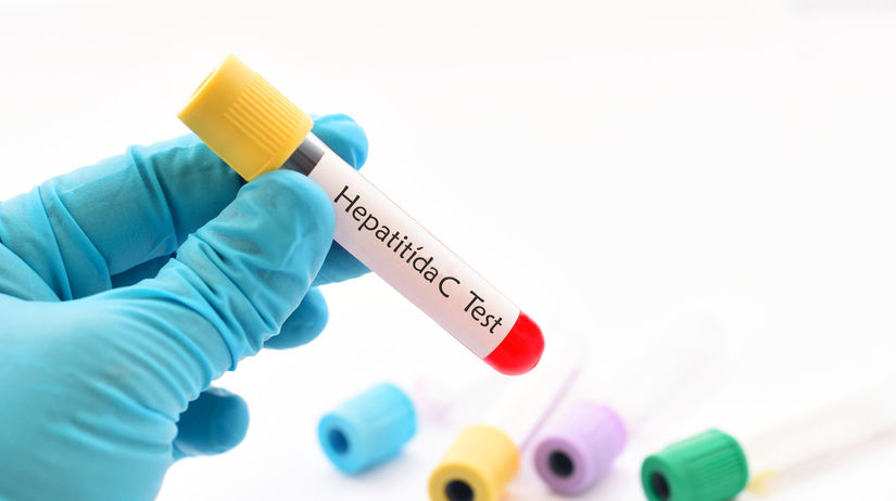 hepatitída, test, krv